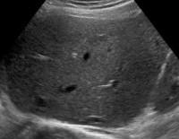 Лечение цирроза печени после выписки