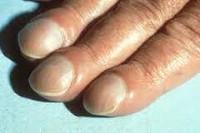 Кривые ногти на руках причины