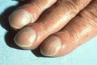 Деформация ногтевой пластины на руках