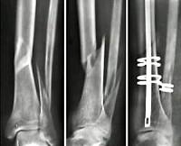История болезни косой перелом большеберцовой кости