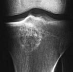 Хондробластома тазобедренного сустава обезболивающие уколы при болях в суставах ног