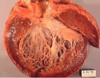 особенности вторичной кардиомиопатии и ее лечение