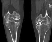 Суставной хрящ на рентгенограмме лечебная физкультура при травмах плечевого сустава