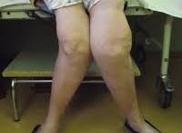 Причины врожденной аплазии голеностопного сустава показания к оперативному лечению при костно-суставном туберкулезе