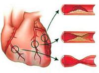Ишемическая болезнь сердца - причины, симптомы, диагностика и лечение
