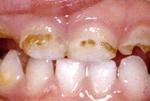 Гипоплазия эмали