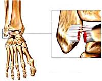 Разрыв связок локтевого сустава симптомы курортное лечение суставов в карелии