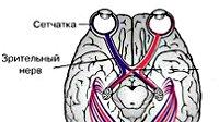 Атрофия зрительного нерва что это такое
