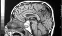 Лечение аденомы гипофиза препараты