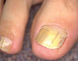 трихофития ногтей (характерная желтизна пластины)