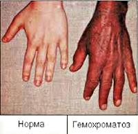 Гемахроматоз суставы связки коленного сустава лечение в домашних условиях