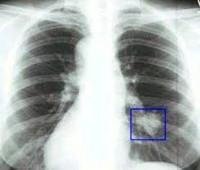 Злокачественные опухоли легких причины симптомы диагностика и  Злокачественные опухоли легких