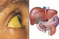 Цирроз печени лечение в стационаре