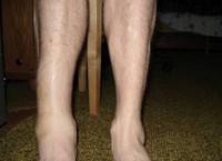 Перелом плюсневой кости история болезни по травматологии