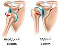 Первая помощь при вывихе правого плечевого сустава гонартроз 2 3 степени коленного сустава лечение
