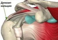 Тендинит плечевого сустава - причины, симптомы, диагностика и лечение
