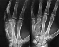 Хондрома коленного сустава лечение разрыв мениска коленного сустава лфк
