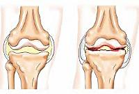 Клиника раннего артрита в алматы