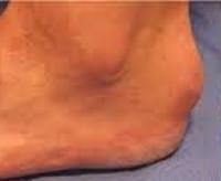 Бурсит стопы - причины, симптомы, диагностика и лечение