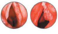 Рак гортани - причины, симптомы, диагностика и лечение