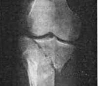 перелом мыщелка большой берцовой кости со смещением вред здоровью