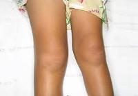 артрит мелких суставов