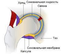 Воспаление синовиальной жидкости тазобедренного сустава разрыв у костно-фалангового сустава пальца