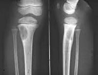 Фиброма мягких тканей причины 82