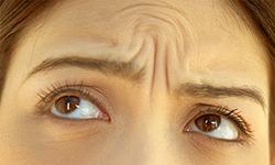 Морщины - причины, симптомы, диагностика и лечение