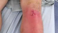 Острый гнойный артрит коленного сустава причины расширение суставной щели внчс у детей