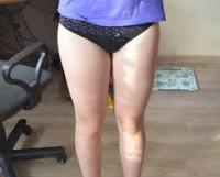 Толстым ляжки у женщин фото