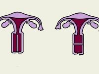 Если внутри вагины черное — photo 14