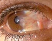 Что такое птеригиум глаза