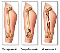 Перелом ноги - причины, симптомы, диагностика и лечение