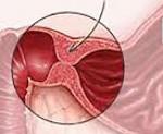 Врожденный пилоростеноз - причины, симптомы, диагностика и лечение