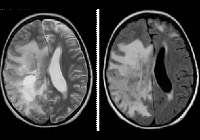 Медицина неврология лейкоэнцефалиты постоянная тошнота после еды и болит живот внизу