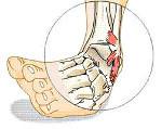 Диагностика разрыва связок и мышц