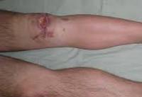 повреждении мениска коленного сустава