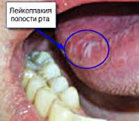 Лейкоплакия выльвы подробное лечение Automag52.ru Интересные факты