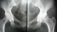 Артрит тазобедренный сустав эндопротезирование тазобедренного сустава в уфе в 2015 году