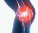 Артрит коленного сустава системные заболевания