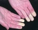 Синдром Рейно - причины, симптомы, диагностика и лечение