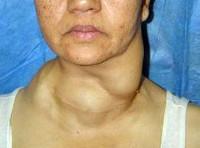 Рак щитовидной железы фото