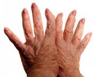 Деформирующий остеоартроз - причины, симптомы, диагностика и лечение
