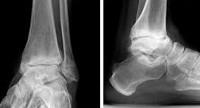 Норма суставной щели голеностопного сустава новое в лечении артроза коленного сустава