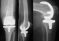 Смоленск протезирование коленного сустава препарат для суставов щенков крупных пород