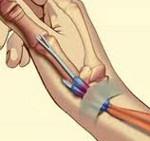 тендовагинит большого пальца руки фото