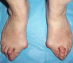 Поперечное плоскостопие. Hallux valgus III степени. Молоткообразные II пальцы стопы