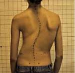 Искривление позвоночника - причины, симптомы, диагностика и лечение