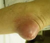 Болезнь локтевого сустава бурсит щелкают коленные суставы при ходьбе